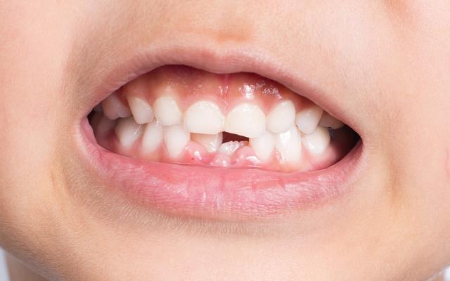 الوقاية من التسوّس لدى الأطفال من عمر 2 إلى 6 سنوات
